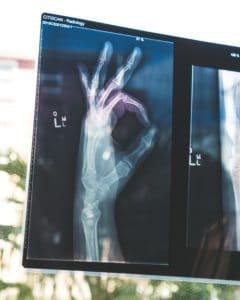 iot healthcare device